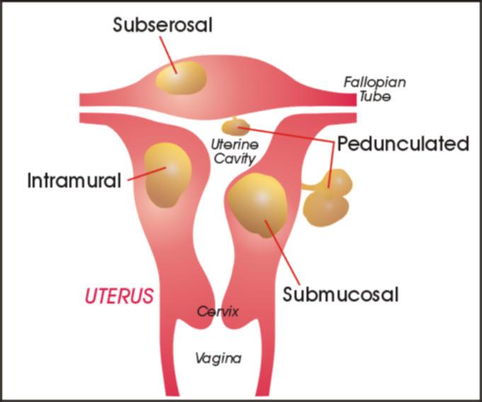 Fibrom uterin, studiu de caz
