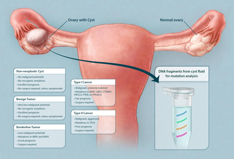 Tumoră chistică borderline, studiu de caz